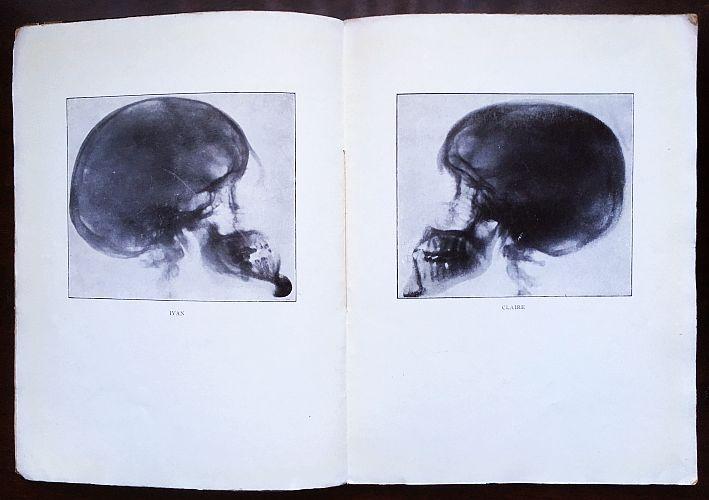 Avec une eau-forte originale de Foujita. ( ) Poèmes de la vie et de la  mort. Avec deux radiographies. Paris, Jean Budry   Cie, ... 176f1d07651